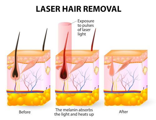 Why Does Laser Hair Removal Require Several Sessions
