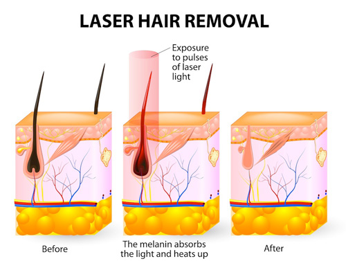 Laser-Hair-Removal-Sessions